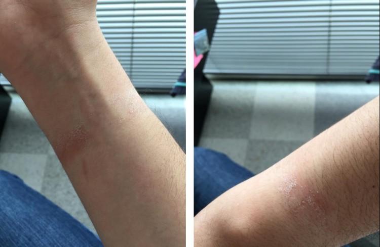 アップルウォッチ 皮膚炎症